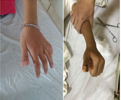 DỊ TẬT THỪA NGÓN TAY CÁI BẨM SINH ( Thumb polydactyly )